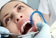 De ce îmi sângerează gingiile?