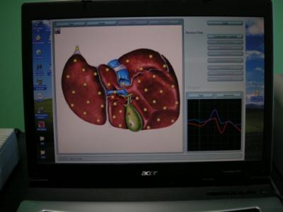 Ficatul linistit si vezica biliara agitata-medicina energo-informationala,